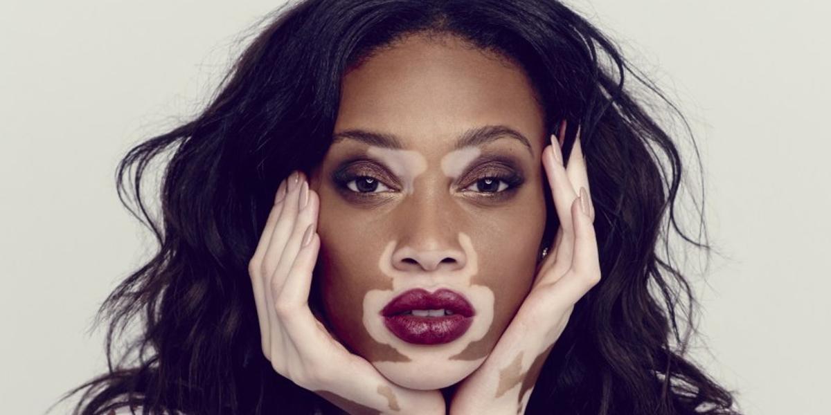 hur börjar vitiligo